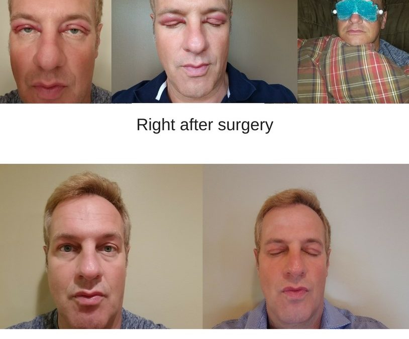 Dr. Steve has blepharoplasty